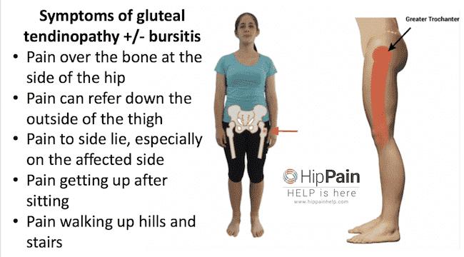 gluteal tendinopathy +/- trochanteric bursitis symptoms summary list