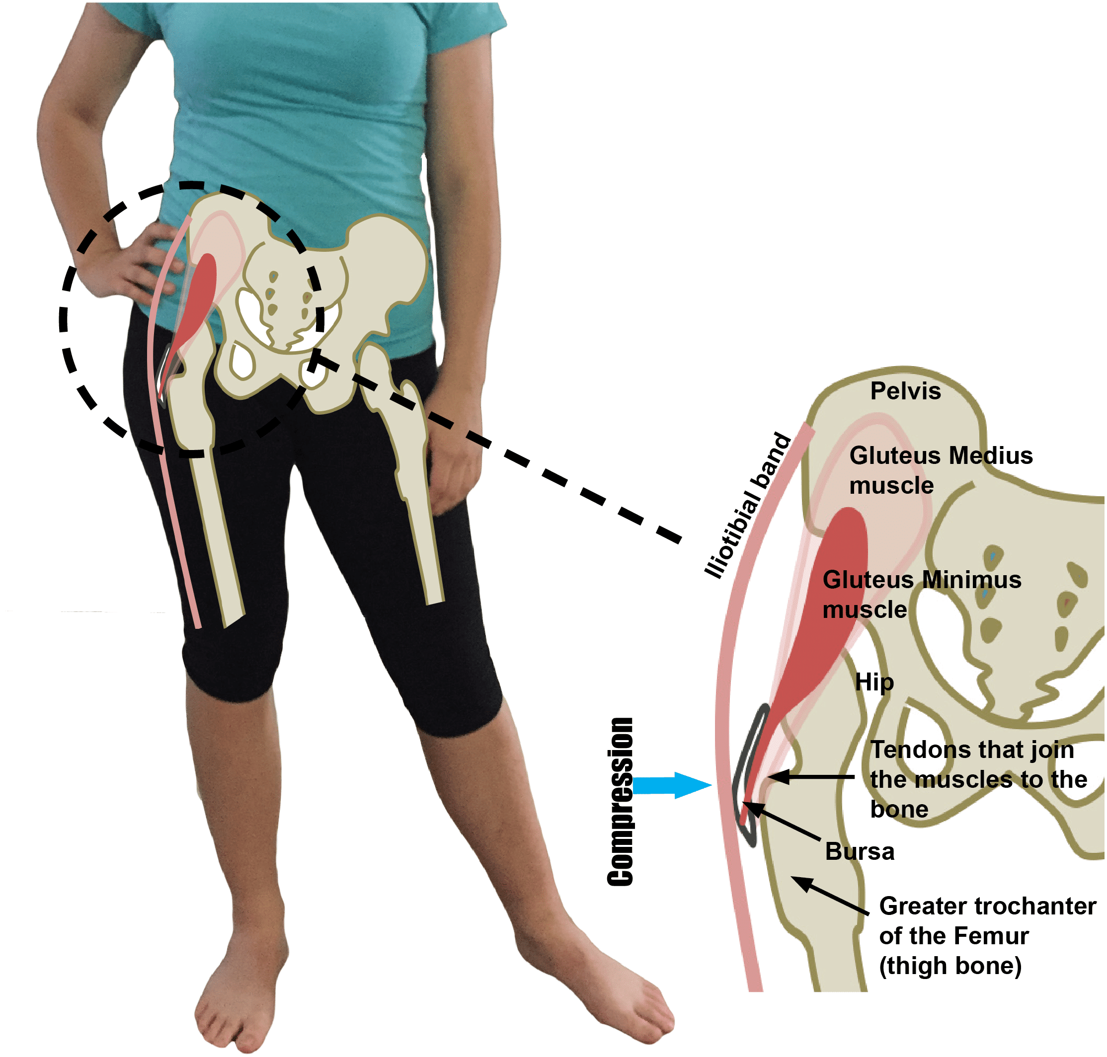 Gluteal Tendinopathy or Trochanteric Bursitis Aggravation with Compression at the Greater Trochanter
