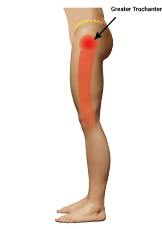 area at the side of the hip where gluteal tendinopathy symptoms +/- trochanteric bursitis symptoms are felt