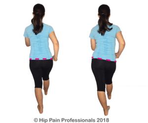 Walking pattern gluteal tendinopathy