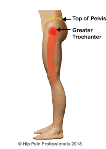 Typical area of pain described by those with symptoms relating to gluteal tendinopathy or hip bursitis