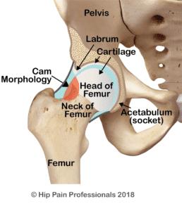 Cam type Femoroacetabular Impingement