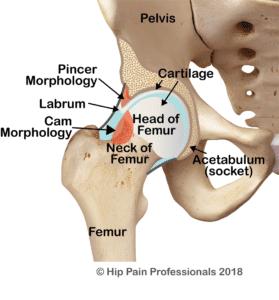 Mixed type Femoroacetabular Impingement