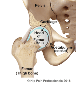 hip joint including hip joint cartilage where can get hip OA
