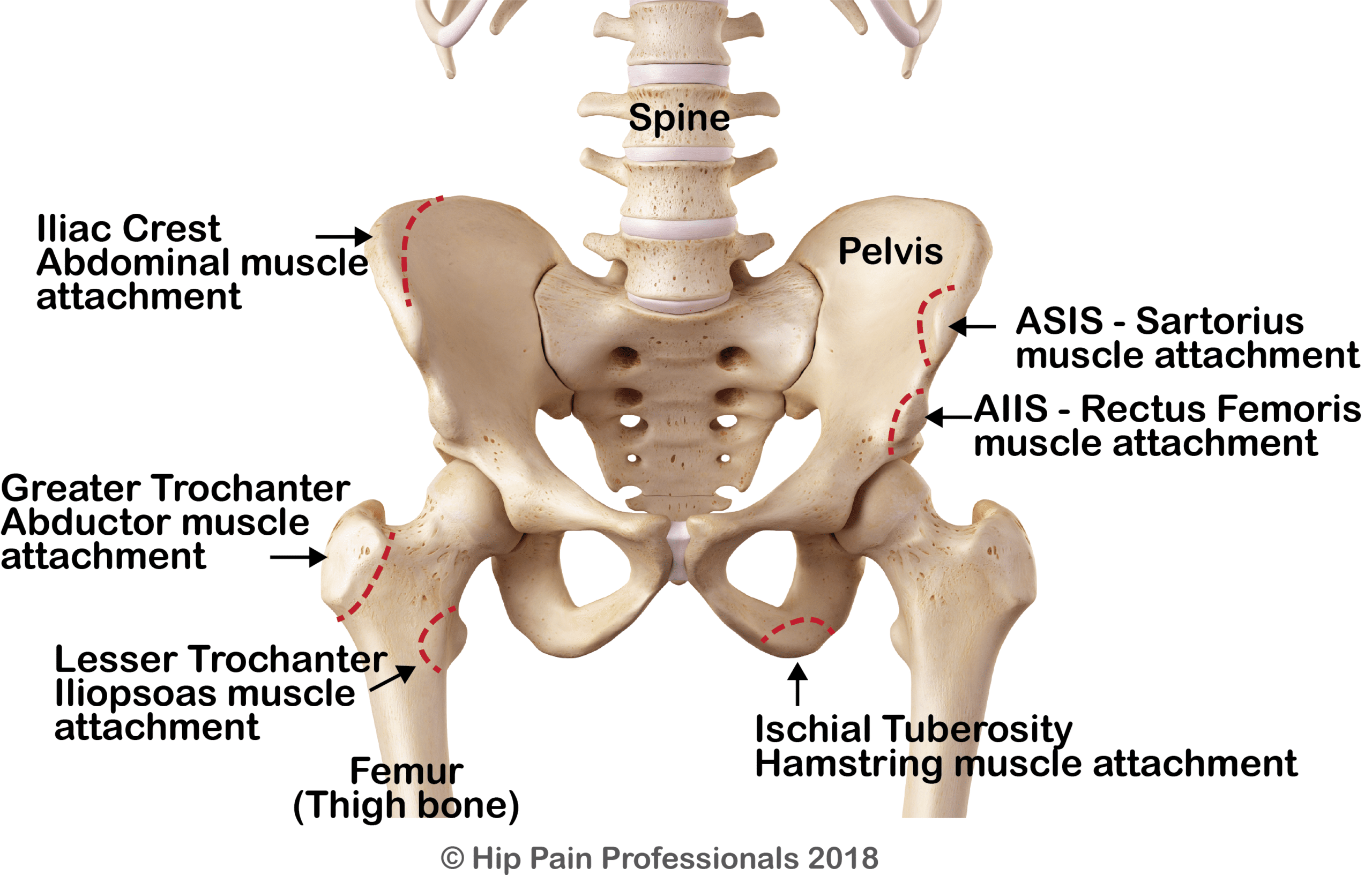 Growing Pains around the Hip & Pelvis - Apophysitis & AvulsionHip Pain Help