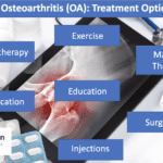Treatment options for hip osteoarthritis