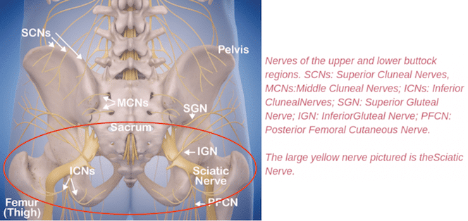 hip pain relief sitting by reduced buttock nerve compression