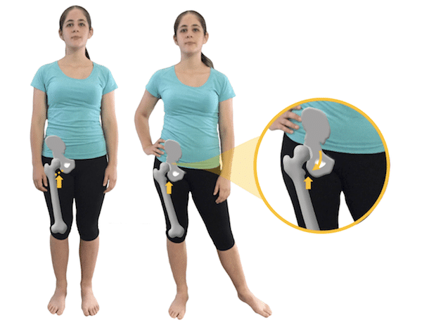 how hip hanging can affect the hip joint with Ischiofemoral impingement