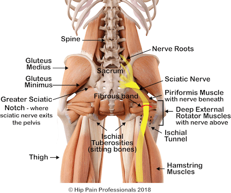 sciatic nerve and the bony and muscular structures where the nerve can be trapped with sciatica, piriformis syndrome, or deep gluteal syndrome