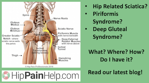 Hip Related Sciatica, Piriformis Syndrome, Deep Gluteal Syndrome: what where how symptoms