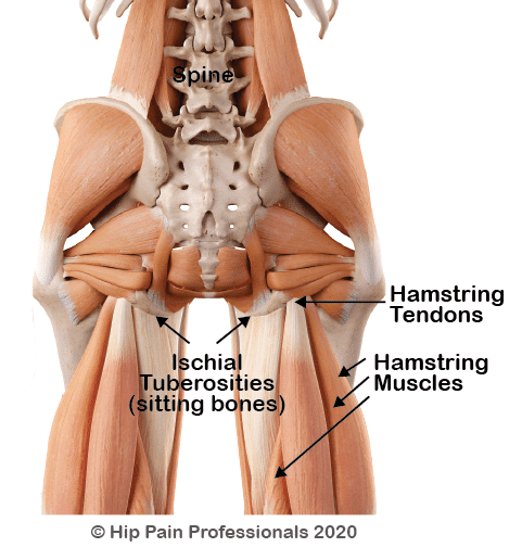 Back view of body. Deep muscle layer indicating proximal hamstring tendinopathy
