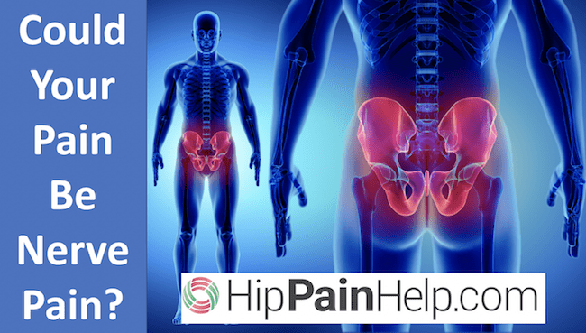 is your hip pain nerve pain