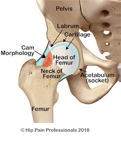 Cam morphology (shape) of the head-neck junction of the femur (one of the causes of FAIS). The additional bone is indicate by the red region