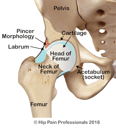 Pincer morphology (shape) of the acetabulum (socket) (one of the causes of FAIS). The additional bone is indicated by the red region.