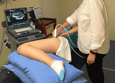 hip stability using real time ultrasound in the treatment for acetabular dysplasia