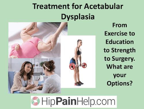 treatment for acetabular dysplasia