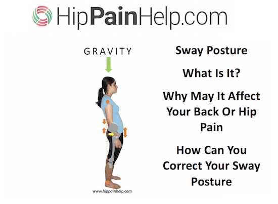sway posture: is this standing posture relevant to you and your back or hip pain