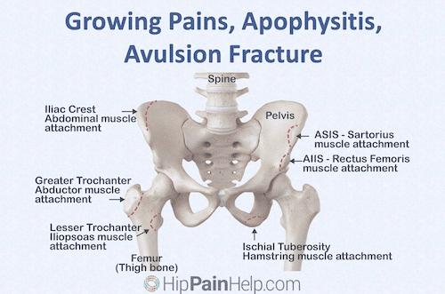 growing pains apophysitis avulsion fracture header