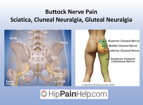 buttock nerve pain scaitica cluneal nerve and gluteal nerves and neuralgia