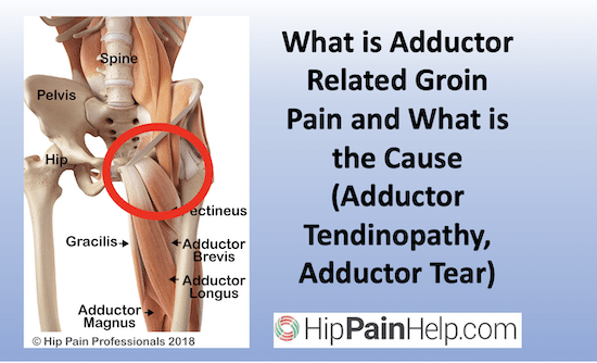 what is adductor related groin pain adductor tendinopathy adductor tear
